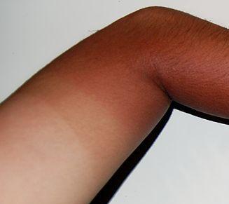 Ruka nakon izlaganja suncu (Izvor: Wikimedia commons)